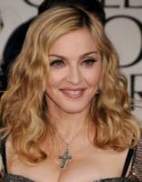 Madonna - Los Angeles - 15-01-2012 - Chantelle Harlow, la modella con la vitiligine