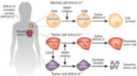 Mutazione geni BRCA1 - Charlotte Brosnan poteva salvarsi con il test anticancro?