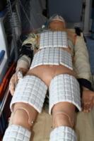 Dottor Piergiorgio Cavallo, Manichino, Ambulanza - Bologna - 30-07-2013 - A Bologna la prima macchina che congela il corpo umano