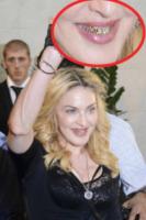 Madonna - Roma - 21-08-2013 - Grillz, la moda vip che non convince! Ostentazione o orrore?