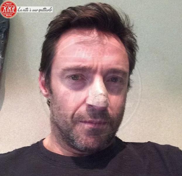 Hugh Jackman - Los Angeles - 21-11-2013 - Bende, cerotti, gessi, la dura vita della star