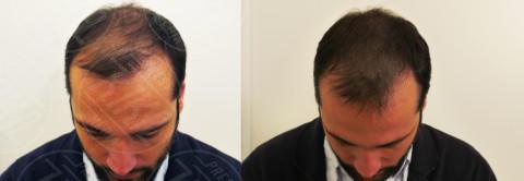 Rocco Pietrantonio - 21-01-2014 - Tricopigmentazione: il trucco dei vip giovanissimi