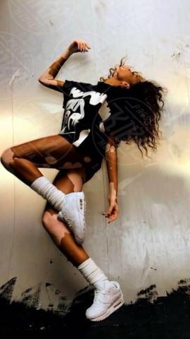 Chantelle Harlow - Londra - 06-05-2014 - Chantelle Harlow, la modella con la vitiligine