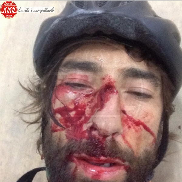 Vittorio Brumotti - Pietra Ligure - 15-07-2014 - Star come noi: anche le celebrità si feriscono