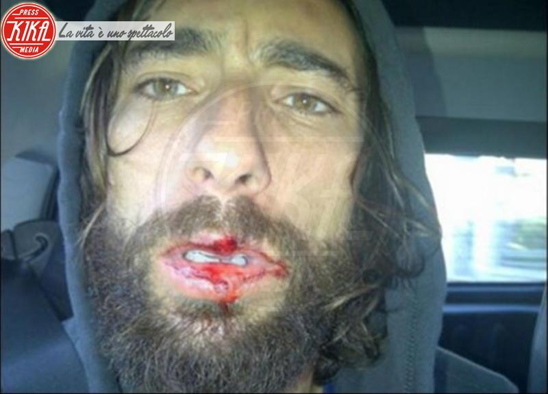 Vittorio Brumotti - Pietra Ligure - 16-07-2014 - Star come noi: anche le celebrità si feriscono