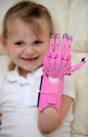 Haley Fraser - 22-09-2014 - Haley, nata senza una mano. Ora ce l'ha, come quella di Iron Man