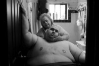 A Life Apart: The Toll of Obesity 1, Lisa Krantz - Londra - 24-02-2015 - Annunciati i finalisti dei Sony World Photography Awards