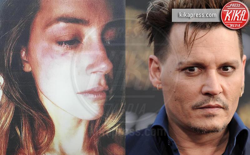 Johnny Depp, ubriaco, si è tagliato la falange di un dito