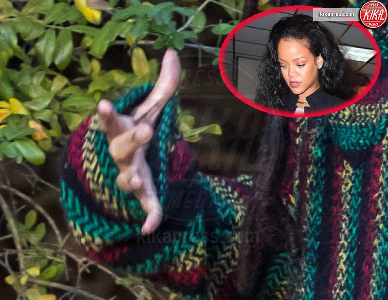 Rihanna - New York - 07-11-2016 - Le star che non sapevate avessero particolari difetti fisici