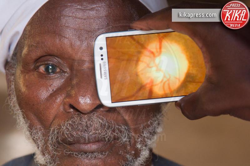 Peek Vision - Londra - 13-02-2013 - Peek Vision: l'app italiana che salva la vista agli africani