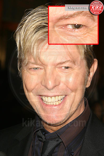 David Bowie - New York - 11-01-2016 - Le star che non sapevate avessero assurdi difetti fisici