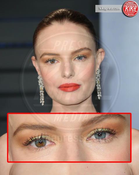 Kate Bosworth - Beverly Hills - 04-03-2018 - Le star che non sapevate avessero assurdi difetti fisici