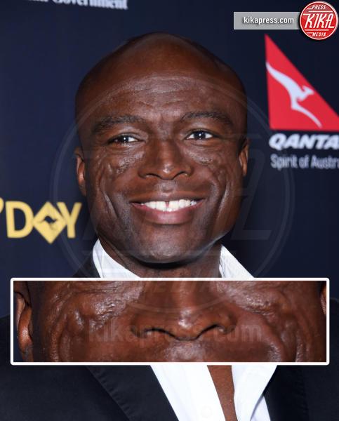 Seal - Los Angeles - 28-01-2016 - Le star che non sapevate avessero assurdi difetti fisici