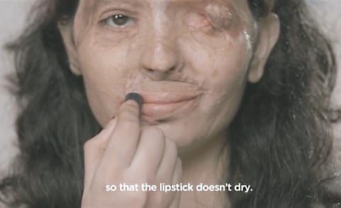 Reshma Bano Qureshi - India - 11-09-2015 - Sfigurata con l'acido: il coraggio di Reshma commuove il web