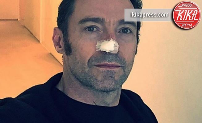 Hugh Jackman - Los Angeles - 13-02-2017 - Hugh Jackman lotta di nuovo contro il cancro alla pelle